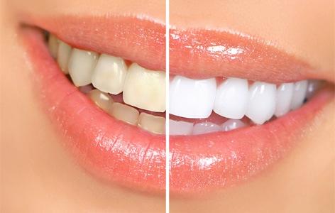teeth-whitening-4
